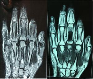Resonancia de mano izquierda (ausencia de erosiones en articulaciones metacarpofalángicas y carpometacarpianas, de estrechamiento articular o de edema óseo).