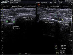 Tendinitis bicipital en inserción de hombro izquierdo antes del tratamiento inmunosupresor.