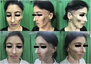 Lipoatrofia facial grado 3: vista de frente (A), de perfil izquierdo (B) y de perfil derecho (C) en preoperatorio, y vista de frente (D), de perfil izquierdo (E) y de perfil derecho (F) en postoperatorio 3 meses.
