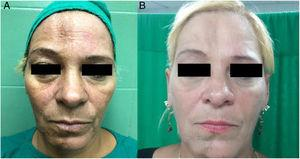 Lipoatrofia facial grado 2: vista de frente en preoperatorio (A) y postoperatorio 3 meses (B).