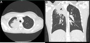 Tomografía de tórax A) corte axial. B) Corte coronal. Opacidad parenquimatosa en el segmento apical del lóbulo superior derecho, con áreas sugestivas de cavitación con imágenes micronodulares, lo que configura un «árbol en gemación».