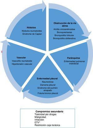 Tipos de compromiso a nivel pulmonar por artritis reumatoide. * Enfermedad tromboembólica venosa. Tomado y adaptado de Shaw et al.6.