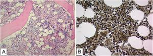 Hypercellular bone marrow biopsy with increased megakaryocytes and increased reticulinic fibers Grade MF-1 (A. H&E stain 20×. B. reticulin stain 40×).