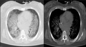 Escanografía de tórax. Infiltrados alveolares en 4 campos pulmonares.