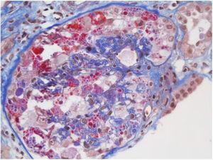 Microscopia óptica: 200×, colapso glomerular severo, patrón focal y segmentario. Tomada de Kissling et al.38.