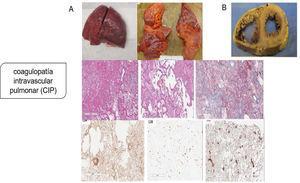 Coagulopatía intravascular pulmonar (CIP) en la infección por SARS-CoV-2. A) Pulmones macroscópicamente: edematosos con hemorragia irregular, con daño alveolar difuso y trombos de fibrina extensos en pequeños vasos y capilares distendidos; microscópicamente: membranas hialinas y hemorragia con trombos de fibrina presentes dentro de vasos y capilares dilatados con depósitos de fibrina extracelular extensa; agregaciones perivasculares de linfocitos, que fueron positivas para CD4 mayoritariamente y escasamente para CD8; presentación de numerosos megacariocitos teñidos con CD61 y el factor von Willebrand respalda aún más la hipótesis de la coagulación local es el factor principal de todo el proceso. B) Los hallazgos patológicos graves del corazón mostraron dilatación ventricular derecha extrema y esfuerzo del tabique interventricular como evidencia de insuficiencia cardíaca derecha causada por hipertensión pulmonar. Tomado de Fox et al.6.