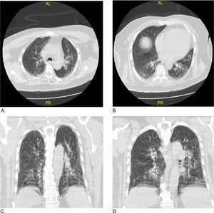 Tomografía computarizada de tórax: A y B) corte axial; C y D) corte coronal.