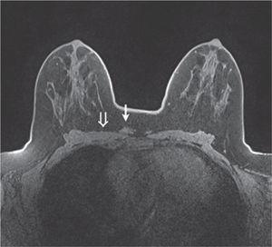 A y B. Radiografía postoperatoria de la endoprótesis de rodilla, con adecuada posición de los componentes.