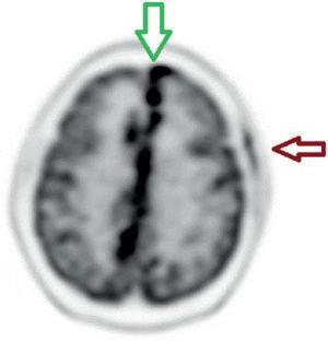 Reconstrucción con corrección de atenuación F18-FDG-PET/CT cerebral. Corte axial que evidencia compromiso infiltrativo hipermetabólico a nivel interhemis férico, con SUVmáx. 14. También se aprecia la captación correspondiente al sitio de biopsia frontal izquierda.