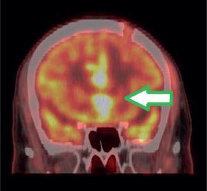 PET/CT imagen fusionada cerebral en vista coronal. Corte coronal evidenciando lesiones hiperglicolíticas que infiltran la región interhemisférica y cuerpo calloso; también se observa solución de continuidad frontal izquierda correspondien te a la biopsia.
