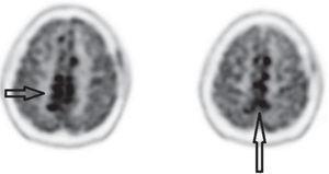 PET/CT imagen fusionada cerebral en un corte axial superior. Se observan las áreas nodulares hipermetabólicas que comprometen la falx cerebro; adicionalmente se observa captación correspondiente a la biopsia frontal izquierda.