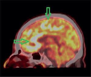 PET/CT imagen fusionada cerebral en un corte sagital. Se observa compromiso hipermetabólico multifocal cere bral más severo en la región frontal y cuerpo calloso (rodilla y cíngulo anterior).