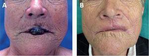 A. Fotografía preoperatoria con lesión en labio superior. B. Fotografía un mes posterior a intervención.