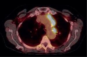 Se evidencian áreas nodulares intensamente hiperglicolíticas que comprometen la región paraaórtica (ganglios autonómicos simpáticos).