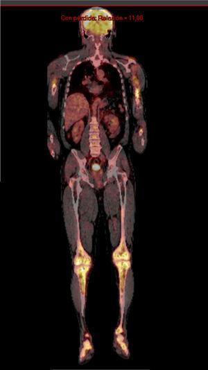 PET scan: captación en tibias proximales y diáfisis.