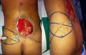 Diseño del colgajo e identificación de vasos perforantes de la arteria glútea superior con doppler.