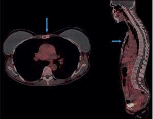 Cortes axial y sagital que muestran lesión focal osteoblástica metastásica con sobreexpresión de receptores de somatostatina en el cuerpo del esternón (flechas azules).