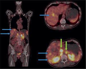 Se evidencian metástasis hipercaptantes que comprometen el parénquima hepático y retroperitoneo (flechas azules y verdes, respectivamente).