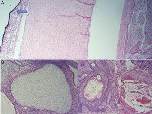 Coloración hematoxilina eosina: A. Con aumento de 4X se observa un tumor germinal que ocupa cámara posterior con invasión del coroides (flecha). B. Con aumento de 10X se observa una mezcla de elementos maduros que incluyen cartílago, piel, glándulas mucinosas y estroma.