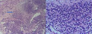 Coloración de hematoxilina eosina: con aumento 10X y 40X se observa la presencia de tejido neural con múltiples focos inmaduros tipo neuropilo con pseudorosetas (flecha).