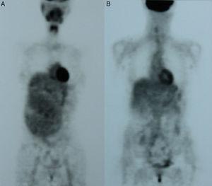 A y B. PET al dignóstico (A) y tras cuatro meses de tratamiento con imatinib (B).