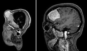 RM craneal sagital con contraste gadolinio, cortes consecutivos, mostrando una lesión metastásica extracraneal invadiendo hueso e intracraneal extraaxial.