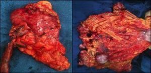 Pieza quirúrgica: útero y anexo derecho (izquierda); epiplón con lesiones tumorales macroscópicas (derecha).