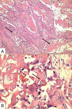 A. (4x) Células grandes escamoides con franca queratinización (flechas). B. (40x) Perlas de queratina dentro de los nidos de células escamoides, algunas con nucléolo prominente.