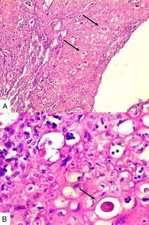 A. (4x) Extensa proliferación de nidos de células grandes escamoides con perlas de queratina (flechas). B. (40x) perlas de queratina (flecha), se puede ver un infiltrado inflamatorio asociado.