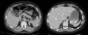 Adrenales normales. Para comparación se presenta la tomografía de un paciente de 18 años donde se aprecian las glándulas suprarrenales de tamaño normal. Compárese el tamaño con las figuras 1 y 2