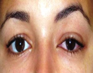 Fotografía clínica de la paciente donde se observa el aumento de volumen supero externo en ojo derecho con aumento de la inyección conjuntival.