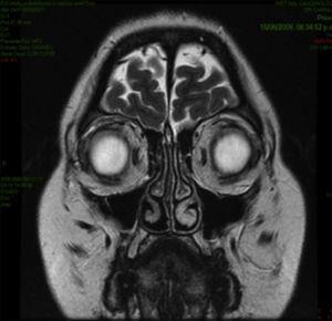 RMN coronal. Hiperintensidad hacia la topografía del margen parasagital derecho y la parte más superior del globo ocular.