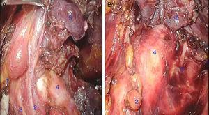 A. Vista endoscópica lado derecho: 1. Paratiroides superior derecha 2. Arteria tiroidea inferior derecha 3. Nervio laríngeo recurrente derecho 4.Tráquea 5. Lóbulo tiroideo izquierdo. B. Vista endoscópica lado izquierdo: 1.Paratiroides superior izquierda 2. Paratiroides inferior izquierda 3. Nervio laríngeo recurrente izquierdo 4. Tráquea 5. Hemitiroides izquierdo.