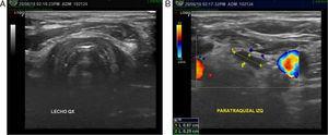 Ecografía prequirúrgica: A. Lecho tiroideo sin evidencia de lesiones sospechosas. B. Lesión paratraqueal izquierda del nivel VI.