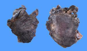 Plasmocitoma.