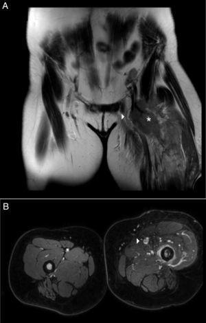(A) Angio RMN (corte coronal). Compresión extrínseca de vena femoral (flecha) por tumoración (asterisco). Importante reacción de partes blandas. (B) Angio RMN (corte longitudinal) Extremidad inferior izquierda. Trombosis focal de vena femoral izquierda (flecha).