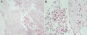 A. Imagen con aumento 10X tinción hematoxilina eosina. B. Imagen con aumento 40X tinción hematoxilina eosina. Biopsia interventricular donde se observa neoplasia maligna de origen glial conformada por células de aspecto gemistocítico que infiltran el parénquima cerebral.