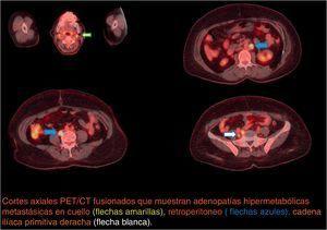 Primer PET/CT Coronal. Cortes axiales PET/CT fusionados que muestran adenopatías hipermetabólicas metastásicas en cuello (flechas amarillas), retroperitoneo (flechas azules), cadena ilíaca primitiva derecha (flecha blanca).