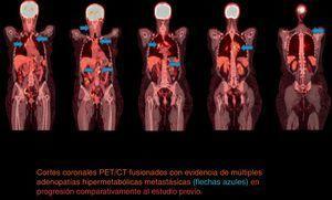 Segundo PET/CT Coronal. Cortes coronales PET/CT fusionados con evidencia de múltiples adenopatías hipermetabólicas metastásicas (flechas azules) en progresión comparativamente al estudio previo.