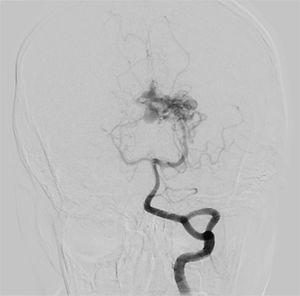 Digital subtraction angiography demonstrates classic arteriovenous malformation in the left thalamic region with drainage to the internal cerebral vein, Spetzler-Martin IIIb.