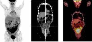 Carcinoma seroso de ovario de alto grado en recaída. Múltiples nódulos peritoneales hipermetabólicos con compromiso subcapsular hepático, esplénico, con extenso compromiso difuso pélvico (SUVmx: 10.13). Se observa patrón de captación principalmente difuso.