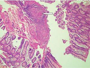 Tinción hematoxilina-eosina en biopsia de la lesión; se evidencia presencia de granulomas en el corte.