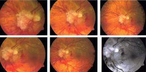 Fotografías del nervio óptico del ojo izquierdo con diferentes magnificaciones, donde se muestran hemorragias intrarretinianas peripapilares, nervio óptico edematizado con lesiones blancas, puntiformes y perladas