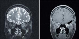 Proyección coronal de resonancia magnética cerebral que muestra aumento de la captación del contraste por el nervio óptico izquierdo (flecha negra), así como de la grasa que lo rodea