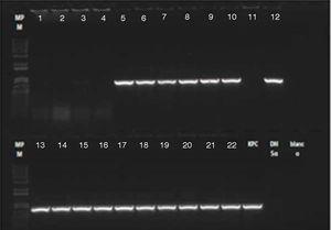 Electroforesis PCR gen blaKPC. Líneas 1-4: caso confirmado paciente 3 (sangre, hisopado rectal, secreción orotraqueal, secreción del sitio de inserción de marcapasos inguinal). Línea 5: caso confirmado paciente 1 (líquido peritoneal). Líneas 6-8: caso confirmado paciente 2 (secreción safenectomía, secreción orotraqueal, hisopado rectal). Líneas 9-11: pacientes colonizados. Líneas 12-16: muestras ambientales. Líneas 17-22: pacientes colonizados. DH5α: control negativo; KPC: control positivo; RX blanco: control de reactivos.