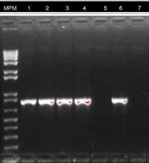 Electroforesis reproceso PCR gen blaKPC. MPM: marcador de peso molecular. Línea 1-4: caso confirmado en paciente 3. Línea 5: paciente colonizado. Línea 6: control positivo. Línea 7: control negativo.