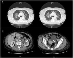 A) TC: infiltrados pulmonares bilaterales en vidrio deslustrado. B) Pionefrosis (flecha blanca izquierda) con dilatación ureteropielocalicial izquierda secundaria a litiasis en tercio distal del uréter (flecha blanca derecha).