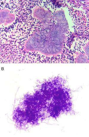 A) Coloración de hematoxilina-eosina del tejido de ovario y trompa uterina (40 x). B) Coloración de Gram de las colonias de Actinomyces recuperadas en agar sangre (100 x). Nótese la morfología de los bacilos grampositivos y el tipo de agrupación característica de este tipo de microorganismos.