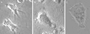 Trofozoítos de amebas de vida libre (Vexilliferas sp. [A], Mayorella sp. [B,C]) 400X, aislados en cultivo celular de mucosa nasal de voluntarios sanos de Piura costa norte de Perú.