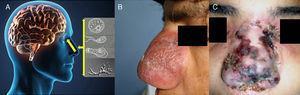 A) La cavidad nasal es la vía de ingreso para la infección para Acanthamoeba, Balamuthia mandrillaris y Naegleria fowleri en humanos, el trofozoíto es el estadio infeccioso. B y C) lesiones centro-faciales de pacientes peruanos que desarrollaron encefalitis fatal. (Foto [C], Cortesía Instituto Nacional de Salud del Niño ISN Lima).
